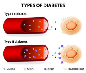 Insulin transfer in type I and type II diabetes.