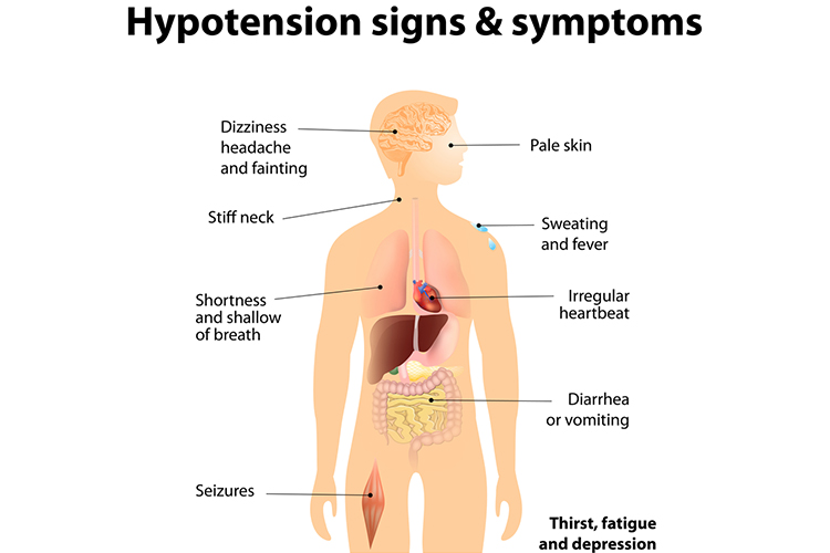 Low Blood Pressure (Hypotension) Signs and Symptoms Graphic
