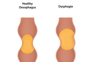 How the oesophagus changes with dysphagia.