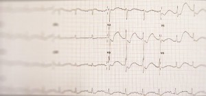 Image for What is Hypokalemia?