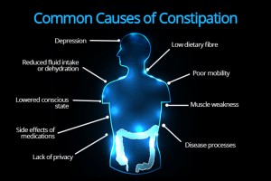 Common causes of constipation.