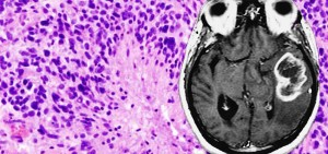 Image for Nursing Care of Glioblastoma Multiforme