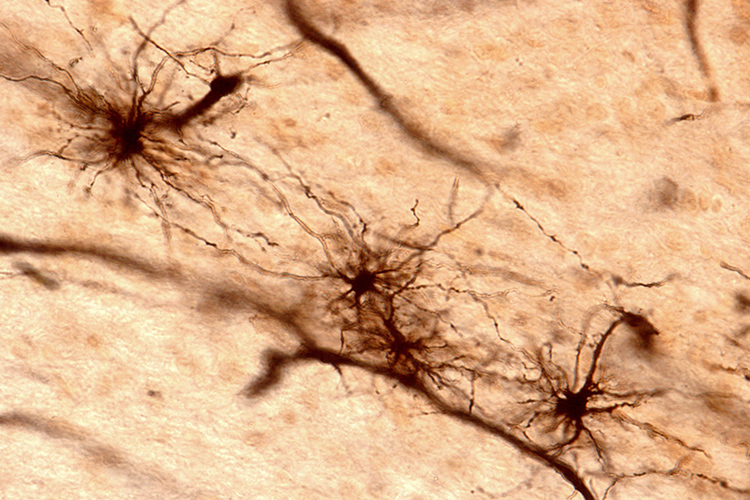Fibrous astrocytes of brain tissue.