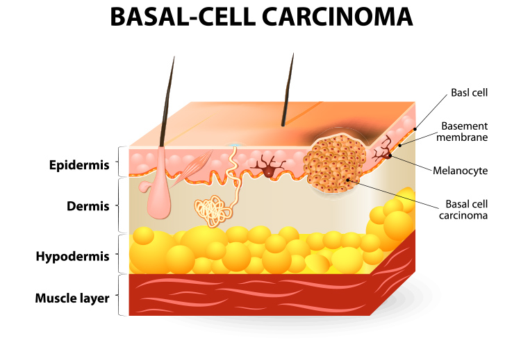 basal cell carcinoma diagram