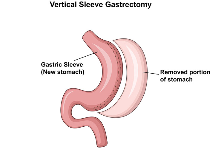 sleeve gastrectomy diagram