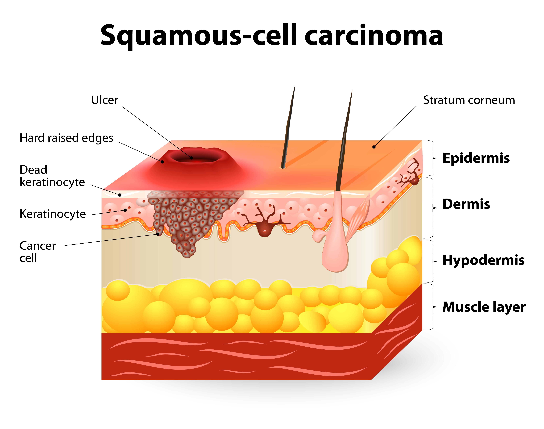 Squamous Cell Carcinoma SCC