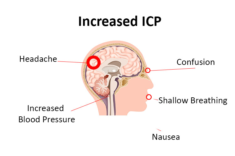 Increased Intracranial Pressure: A Guide For Nurses