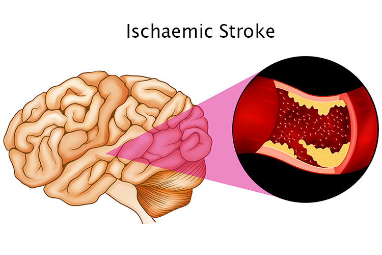 Damaged brain tissue during an ischaemic stroke