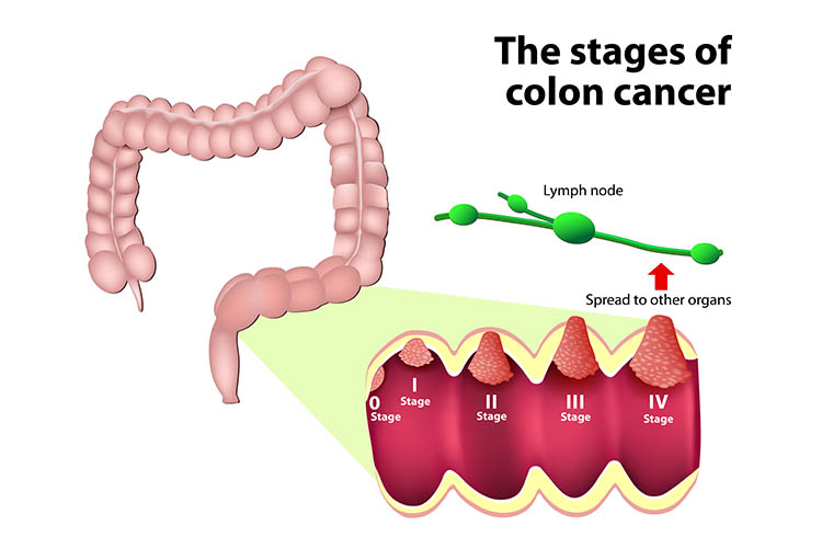 cancer staging