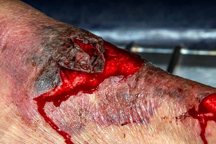 Ausmed's Wound Care and Wound Healing Guide for Nurses Lacerations.