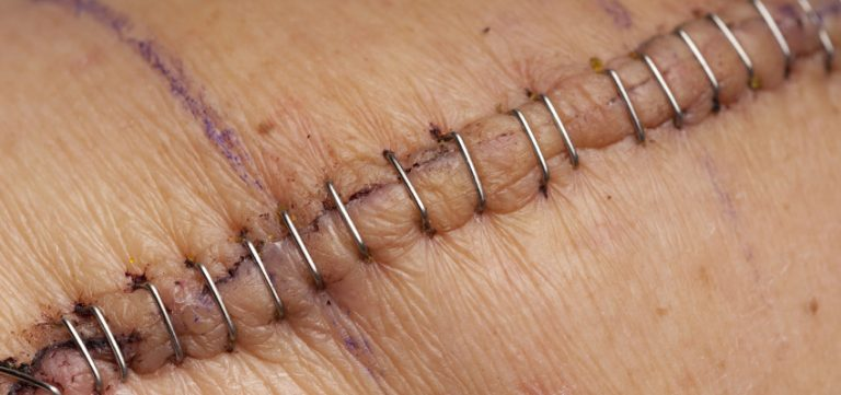Image for Surgical Wounds, Abrasions, Lacerations