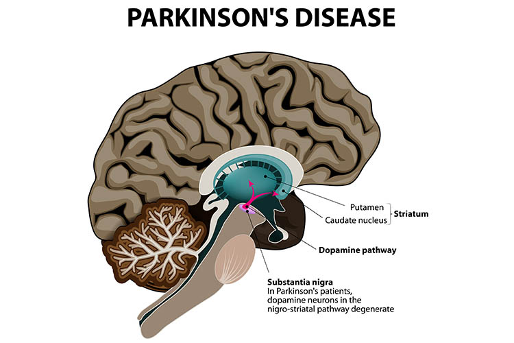 Brain anatomy - Parkinson's Disease | Image