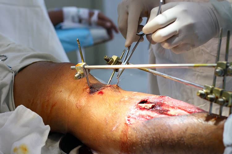 External Fixation Devices Nursing Care - Ausmed