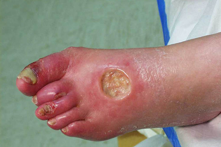 Wound Care Manual and Clinical Guidelines for Nurses