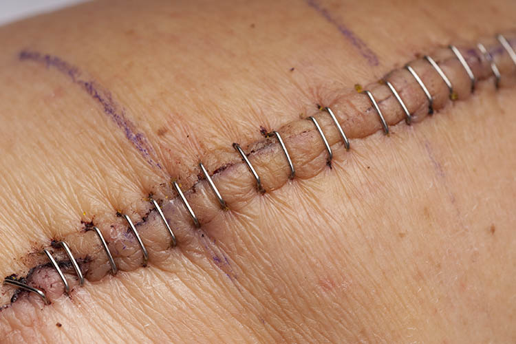 Ausmed's Wound Care and Wound Healing Guide for Nurses A simple suture line.