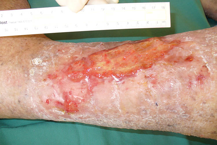 Ausmed's Wound Care and Wound Healing Guide for Nurses Venous ulcer on leg.