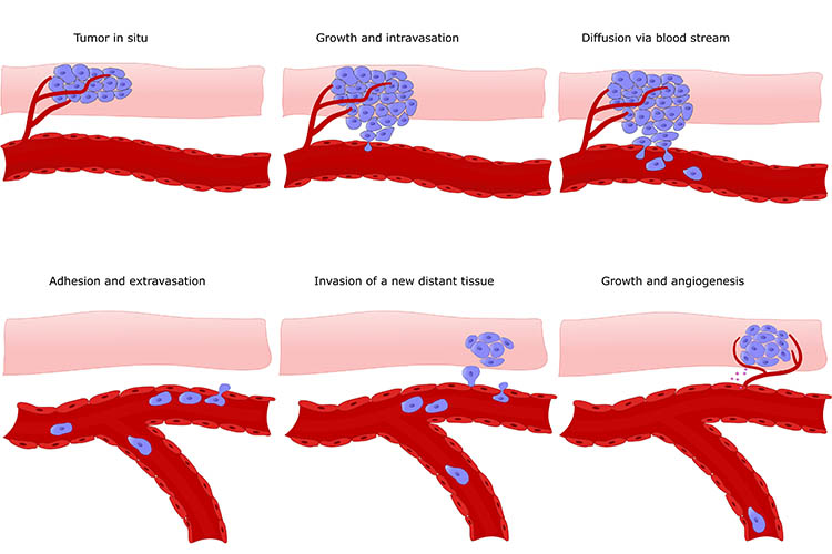 Various forms of metastasis | Image