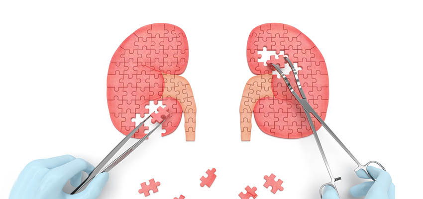 Cover image for article: What Do You Know About Kidney Health?