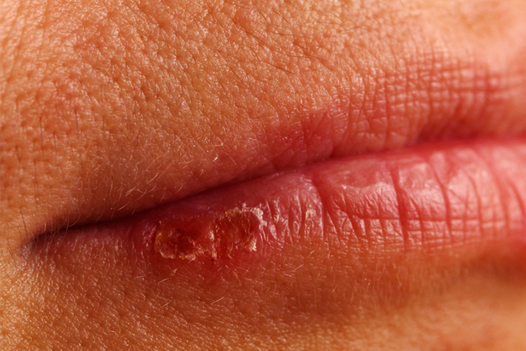 cold sore virus on lips