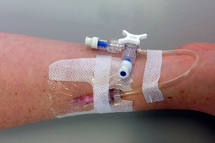 How to Assess a Peripheral Intravenous (IV) Cannula | Ausmed