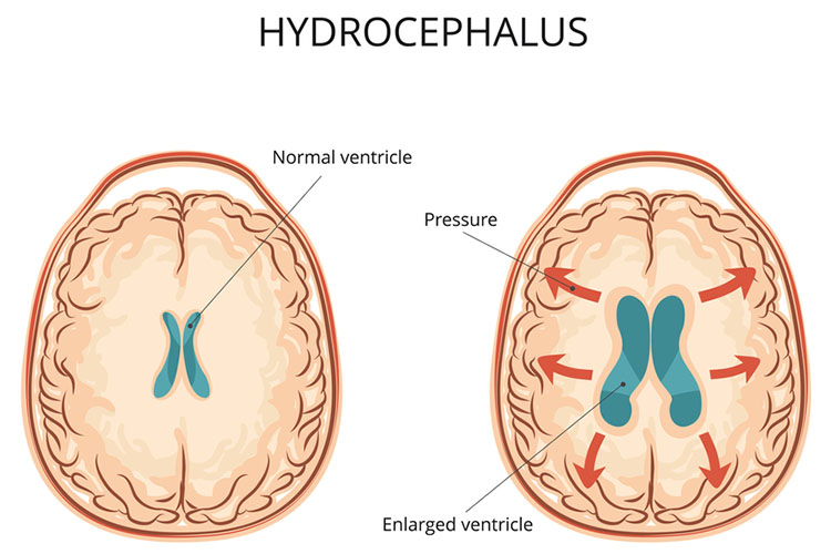 Hydrocephalus and Shunts