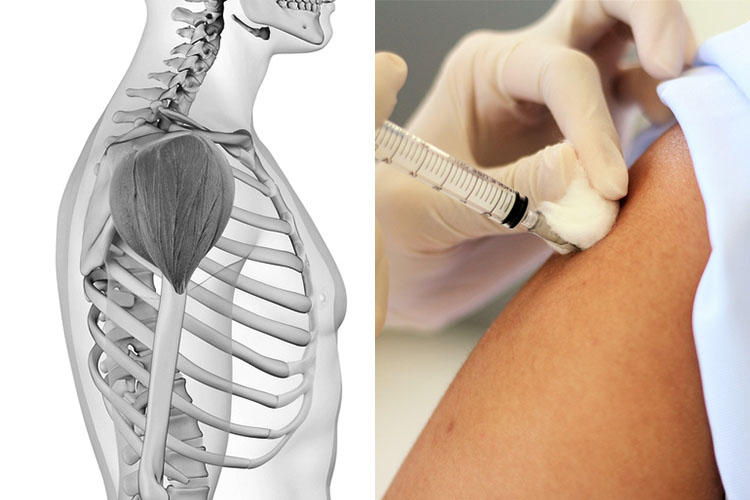 Flu Vaccination Injection Sites - Recommended Technique - Ausmed deltoid