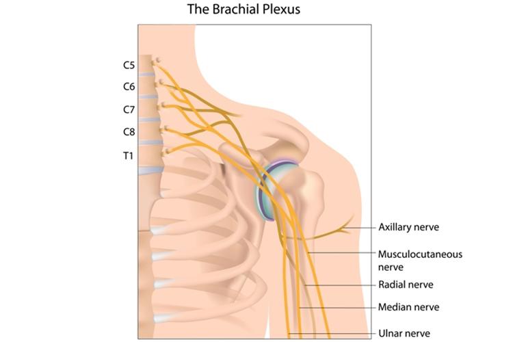 brachial plexus diagram