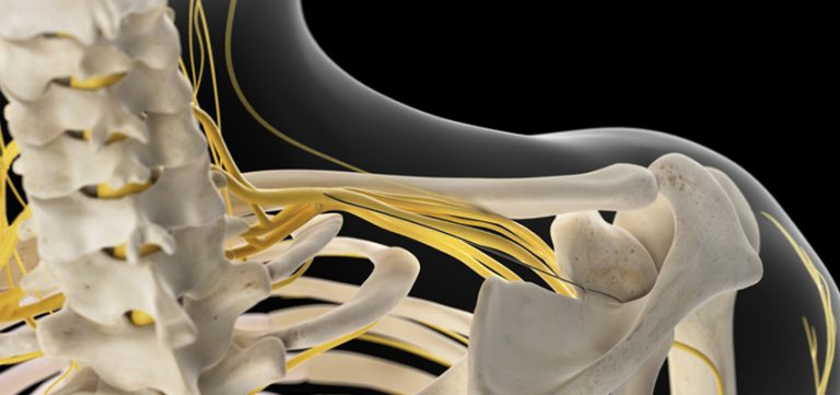 Image for Brachial Plexus Injuries: Care and Treatment