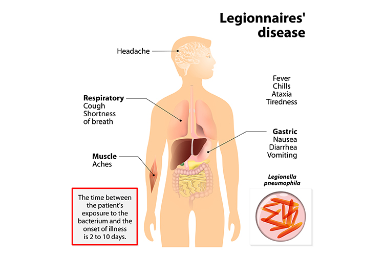 Legionnaires' Disease - a Hospital-Acquired Infection - Ausmed diagram