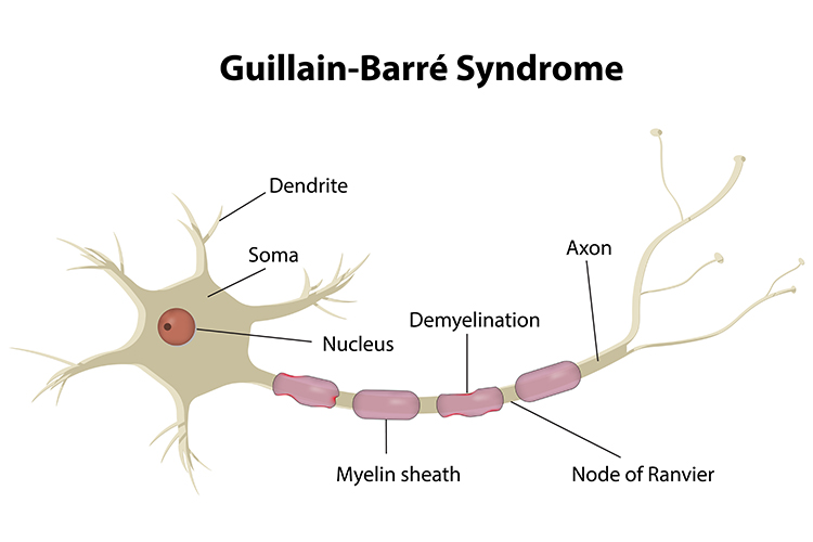 Guillain Barré Syndrome