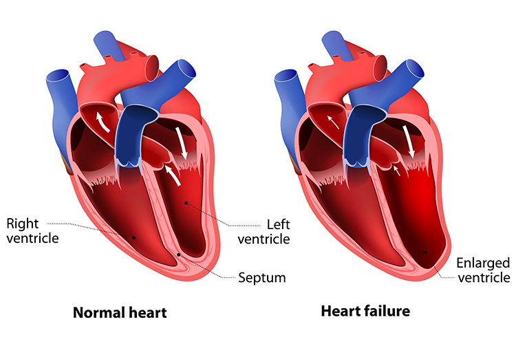 Congestive Heart Failure - Common Reasons for CHF