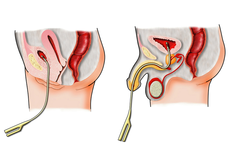 Catheter Associated Urinary Tract Infections - Preventing CAUTI