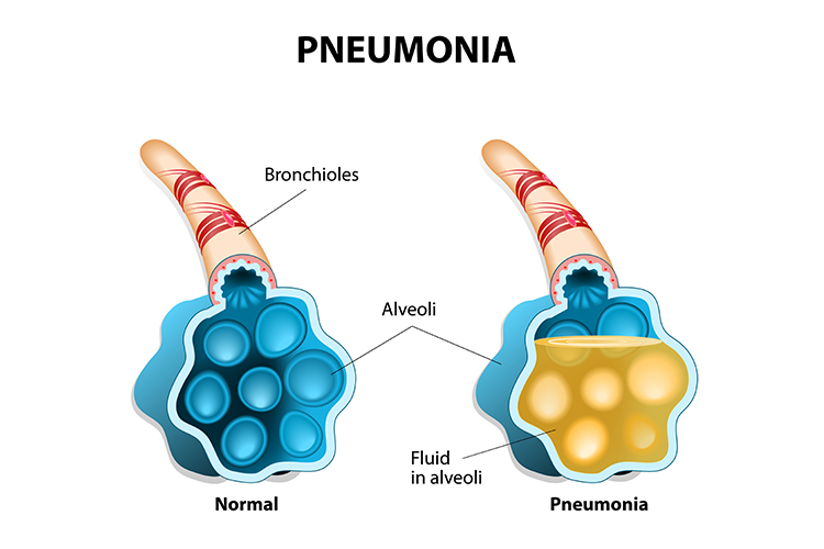 Pneumonia Symptoms, Signs and Treatment