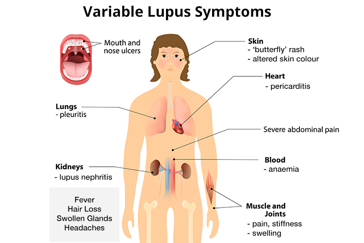 What is Lupus? Lupus Awareness, Symptoms and Diagnosis - Ausmed