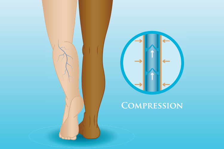 compression therapy. Pulmonary Embolism (PE) - DVT to PE, Symptoms, Treatment & Causes