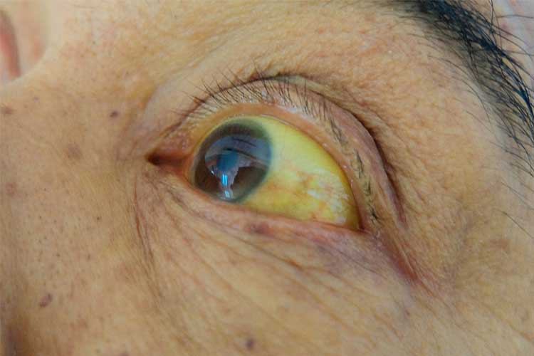 Jaundice - yellow eye - symptom of liver failure | Image