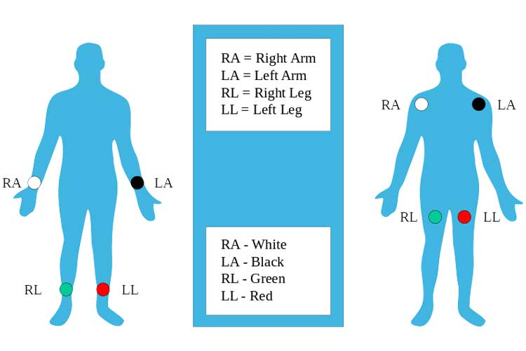 Limb Electrodes - ECG Lead Placement - 12 Lead Placement | Ausmed