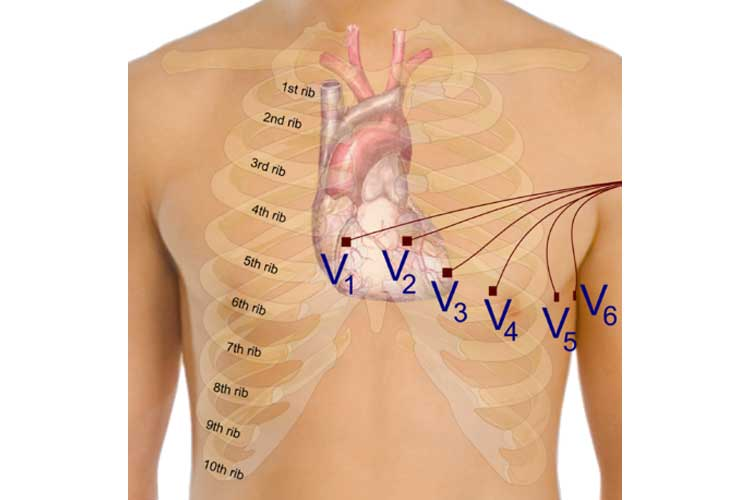 Precordial Electrodes - ECG Lead Placement - 12 Lead Placement | Ausmed