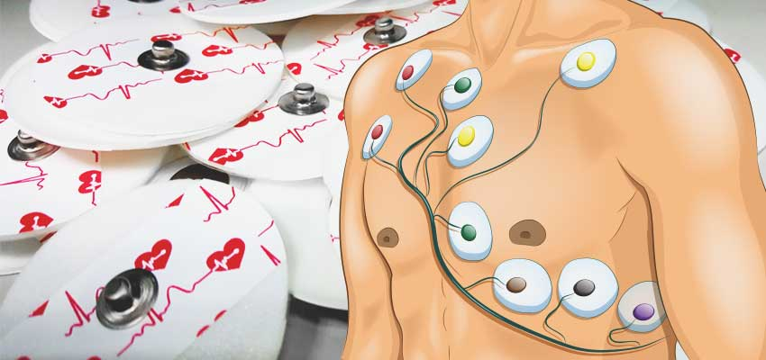 Cover image for article: 12 Lead ECG Placement