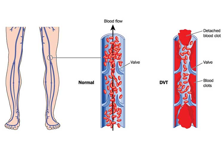 Deep vein thrombosis in leg veins. Pulmonary Embolism (PE) - DVT to PE, Symptoms, Treatment & Causes
