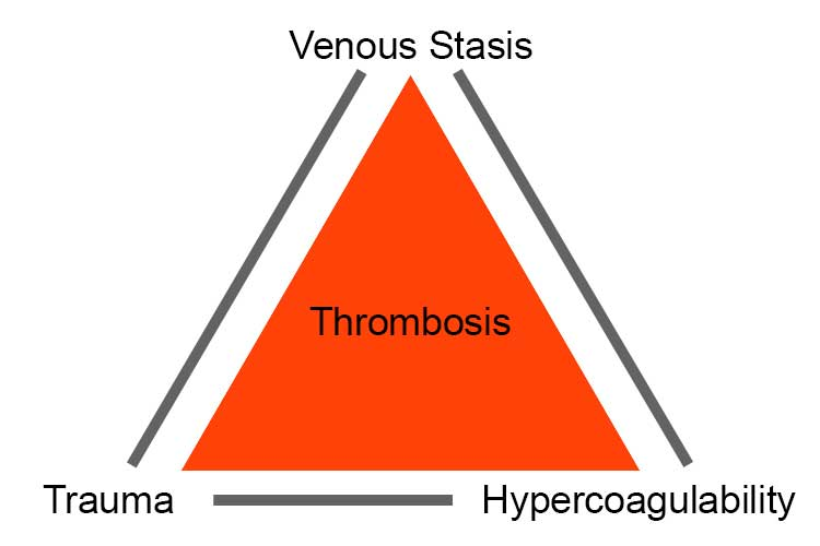 Virchow's Triad Pulmonary Embolism (PE) - DVT to PE, Symptoms, Treatment & Causes
