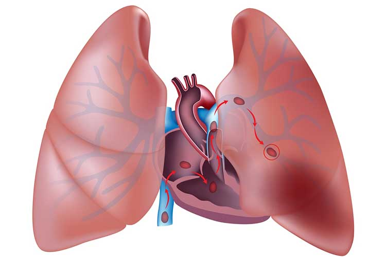 migrations of a thrombis into a Pulmonary Embolism (PE) - DVT to PE, Symptoms, Treatment & Causes