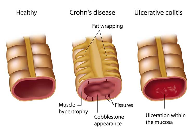 Anatomy comparison of a healthy, Crohn's disease affected, and ulcerative colitis vein   Image
