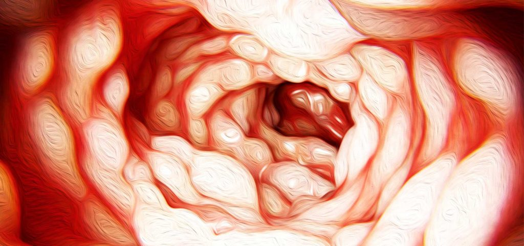 Cover image for article: Crohn's Disease